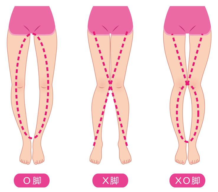 O脚の改善(1) - タイプを知り、正しい対策を立てる
