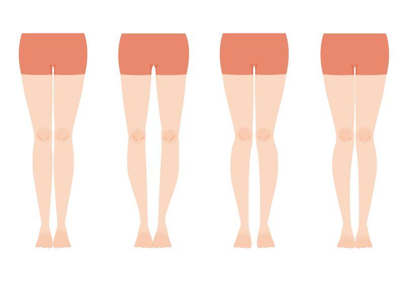 O脚矯正は整骨院がおすすめ!セルフチェック&ストレッチ方法も解説