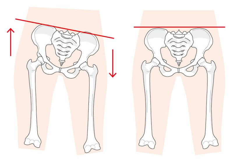 骨盤の歪みはどうして起こる?整骨院で改善はできるのか