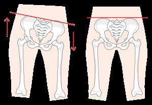 骨盤が歪んだ状態と骨盤が立った状態