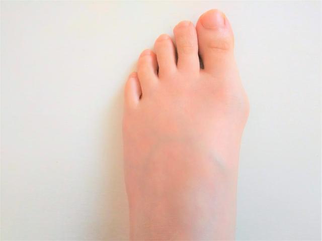外反母趾の症状が出ている女性の左足