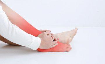 外反母趾の症状がでている女性の足