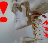 頚椎の弯曲がなくなった骨