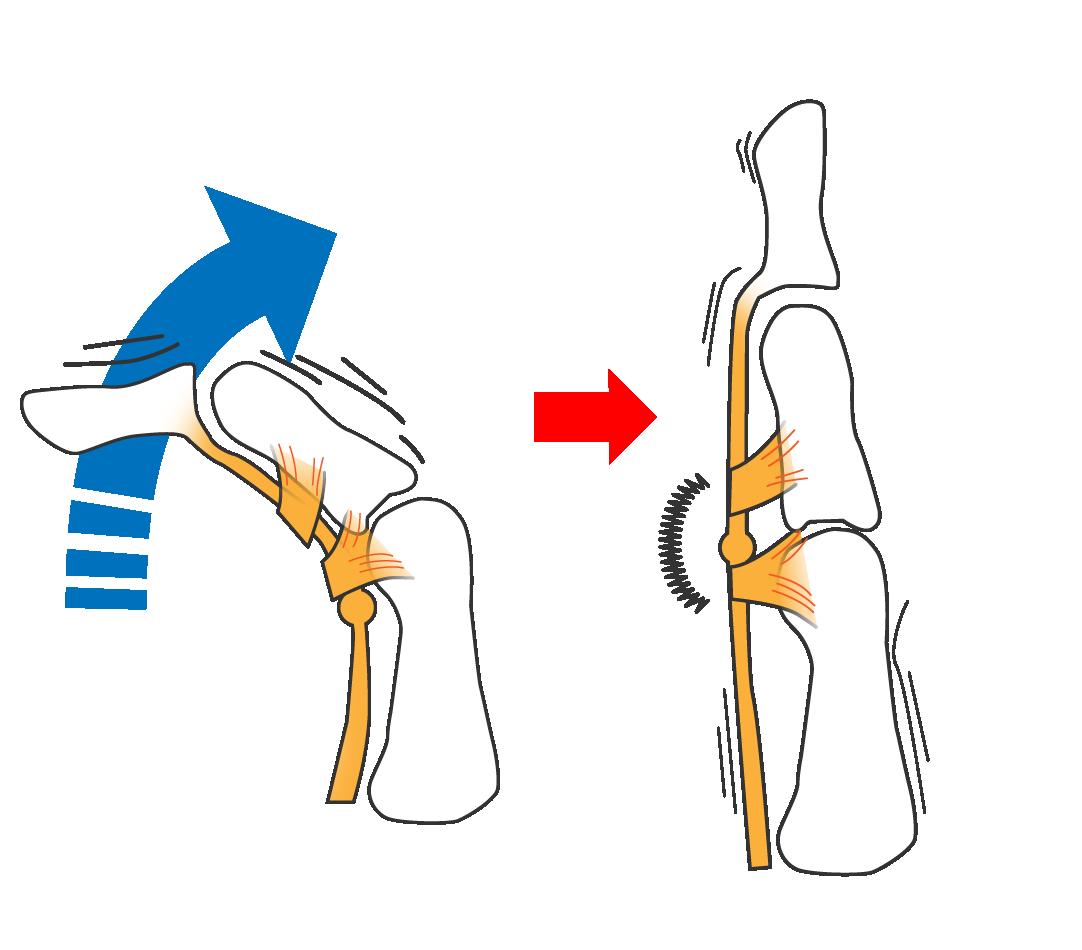 ばね指のメカニズム