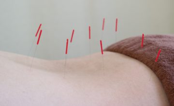 腰に鍼灸治療をうける女性