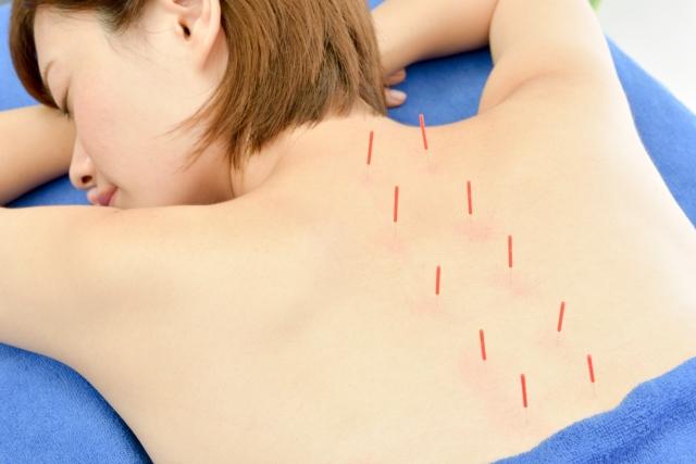 鍼治療を受ける女性