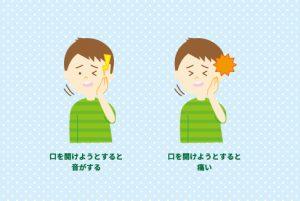 顎関節症の症状