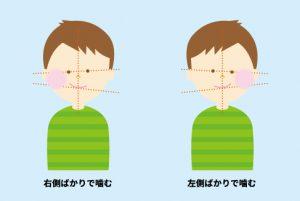 顎関節症の原因習慣