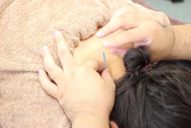 しつこい首こりには鍼灸がおすすめ!血行促進で改善を目指そう