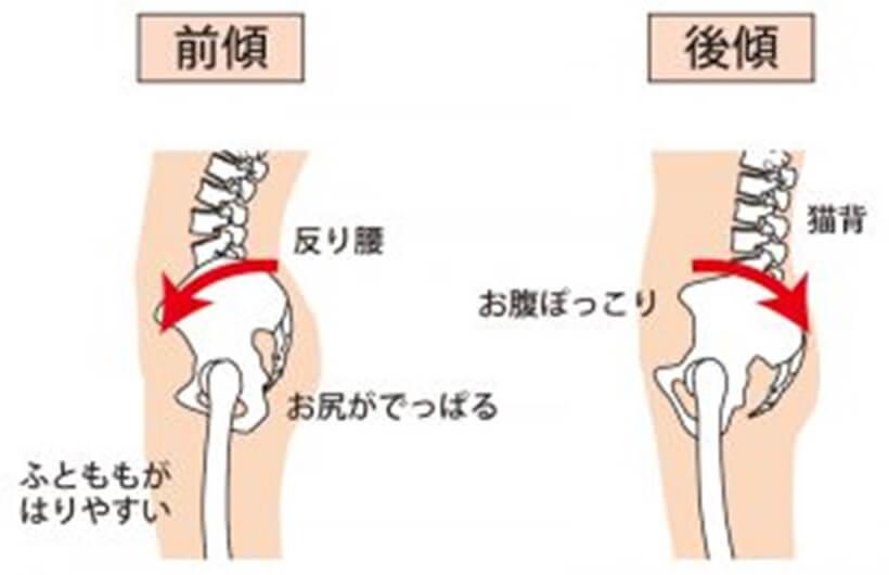 骨盤の前傾と後傾