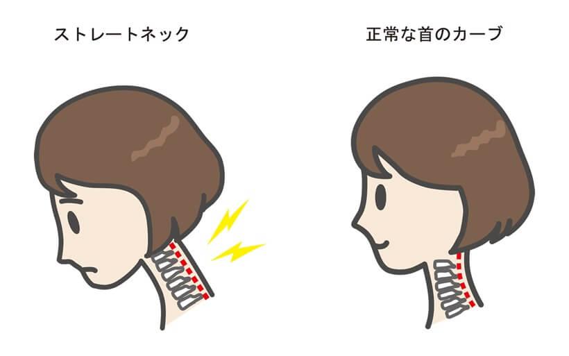 ストレートネックの頚椎のイメージ