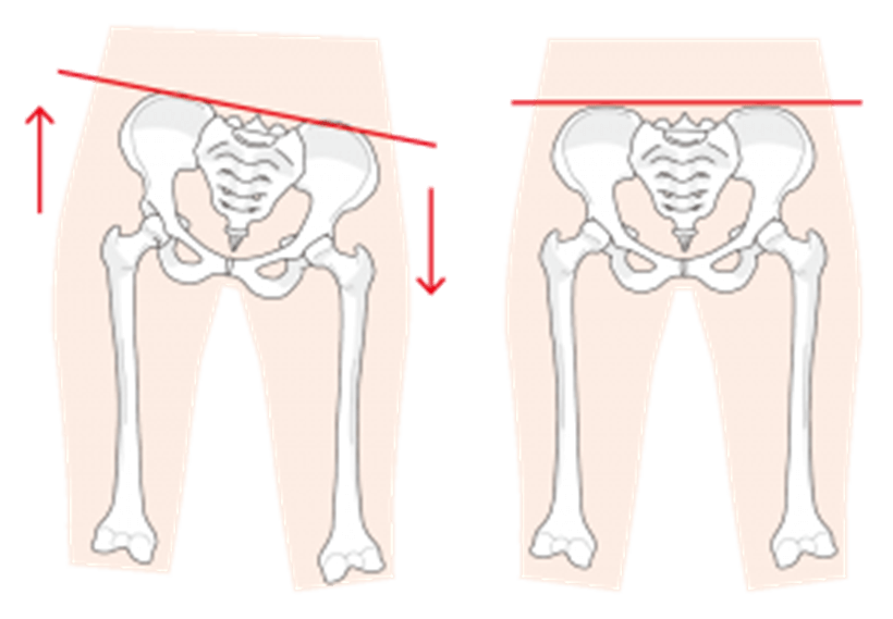 腸骨の高さが地面に対して水平